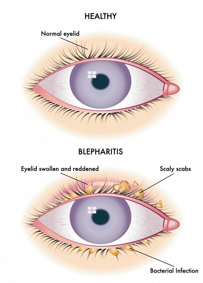 Blepharitis image 2